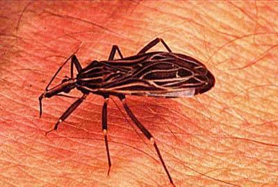 Doença de Chagas – Resumo